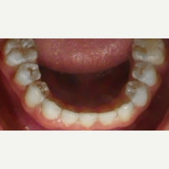 17 or under year old man treated with Braces after 2349827