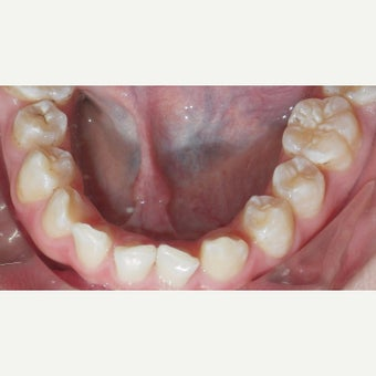 17 or under year old man treated with Braces before 2349827