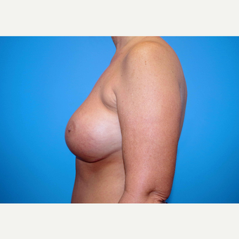 55-64 year old woman treated with Breast Implants after 3439982