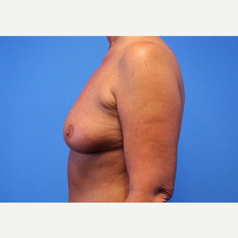 55-64 year old woman treated with Breast Implants before 3439982