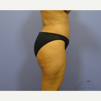 35-44 year old woman treated with Tummy Tuck after 3422027