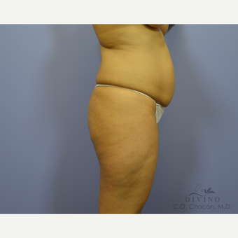 35-44 year old woman treated with Tummy Tuck before 3422027