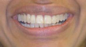 Adult Orthodontics with Six Month Smiles after 3660017