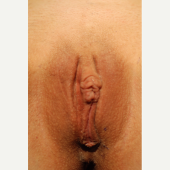18-24 year old woman treated with Labiaplasty after 3783836