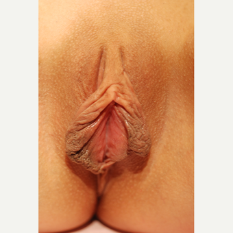 18-24 year old woman treated with Labiaplasty before 3783836