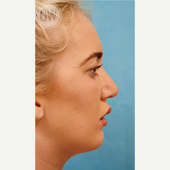 18-24 year old woman treated with a sliding genioplasty after 3473447