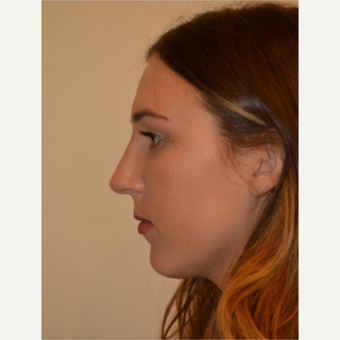 18-24 year old woman treated with Rhinoplasty after 3657952
