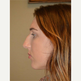 18-24 year old woman treated with Rhinoplasty before 3657952