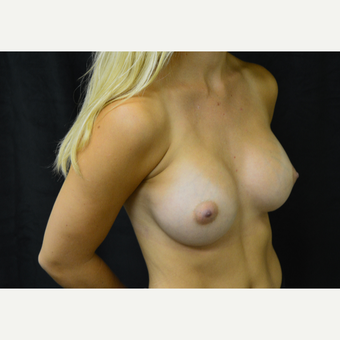 18-24 year old woman treated with Breast Augmentation after 3423989