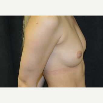 18-24 year old woman treated with Breast Augmentation before 3423989