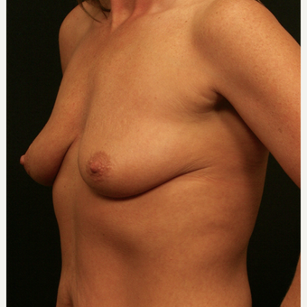 35-44 year old woman treated with Breast Augmentation before 3099459