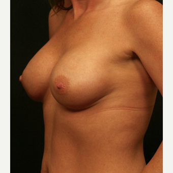 35-44 year old woman treated with Breast Augmentation after 3099459