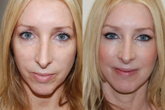 Silikon-1000 injections to cheeks and lower eyelid grooves. Botox.