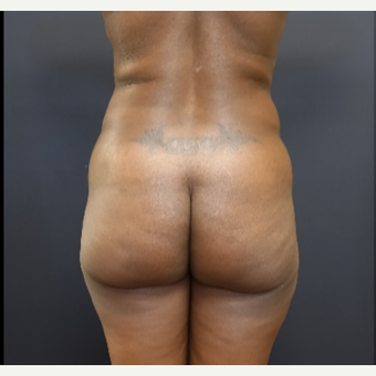 35-44 year old woman treated with Brazilian Butt Lift before 3200888