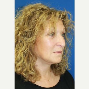 45-54 year old woman treated with Facelift after 3741758