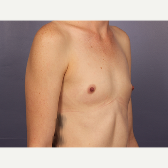 Breast Augmentation before 3663739