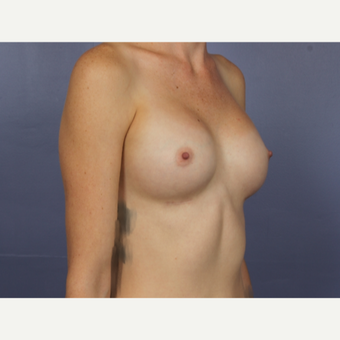 Breast Augmentation after 3663739