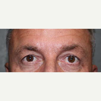 Endoscopic Brow Lift with Upper lid Blepharoplasty before 3370036