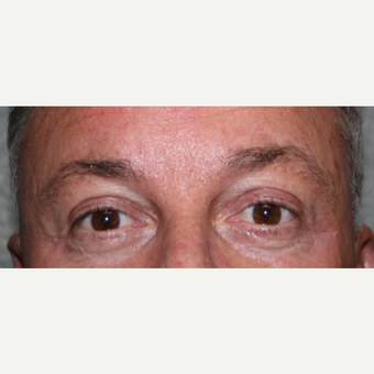 Endoscopic Brow Lift with Upper lid Blepharoplasty after 3370036
