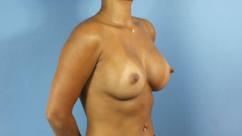 Breast Augmentation after 202674