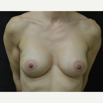 35-44 year old woman treated with Breast Augmentation after 3418214