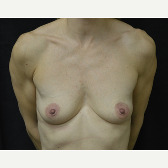 35-44 year old woman treated with Breast Augmentation before 3418214