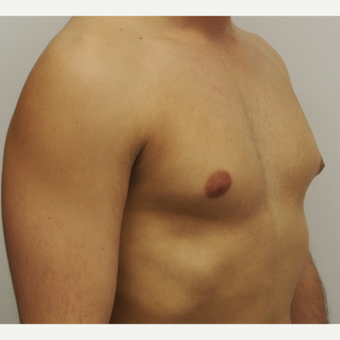 25-34 year old man treated with Male Breast Reduction before 3617397