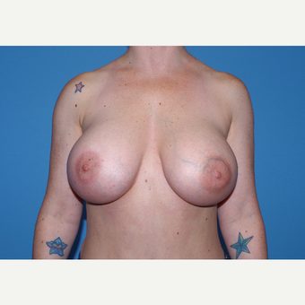 25-34 year old woman treated with Breast Implants after 3440113