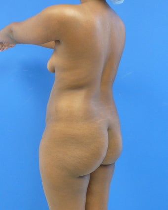 27 y.o. female - Liposuction and fat transfer to buttocks & hips - 1300 cc per side 921588