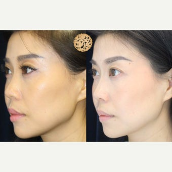 35-44 year old woman treated with Vampire Facelift after 2533719
