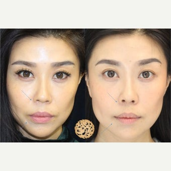 35-44 year old woman treated with Vampire Facelift before 2533719
