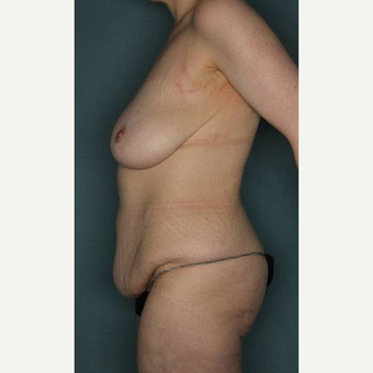 25-34 year old woman treated with Body Lift before 3421131