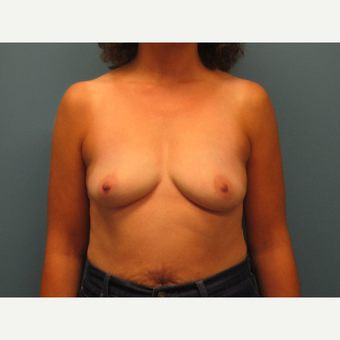 45-54 year old woman treated with Breast Augmentation before 3724898