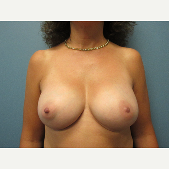 45-54 year old woman treated with Breast Augmentation after 3724898