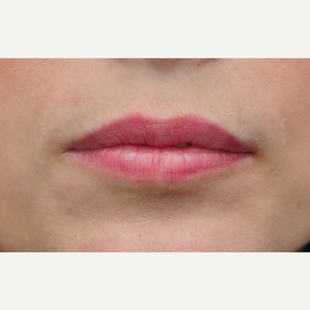 25-34 year old woman treated with Lip Augmentation before 3140302