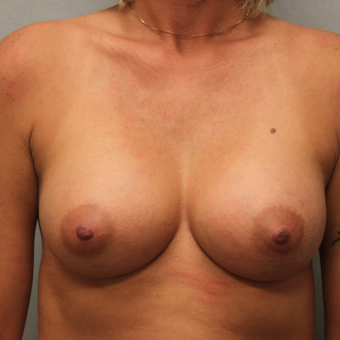 35-44 year old woman treated with Breast Implants after 3459998