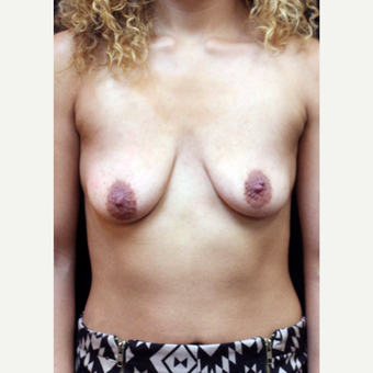 22 year old woman treated with Breast Lift before 3064278