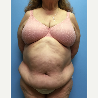 66 year old woman treated with Tummy Tuck and Lipo 360 before 3174828