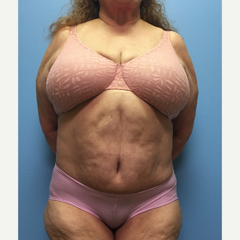 66 year old woman treated with Tummy Tuck and Lipo 360 after 3174828