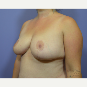 25-34 year old woman treated with Breast Lift after 3386509