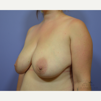25-34 year old woman treated with Breast Lift before 3386509