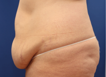 25-34 year old woman treated with Tummy Tuck before 3803777