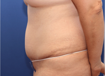 25-34 year old woman treated with Tummy Tuck after 3803777