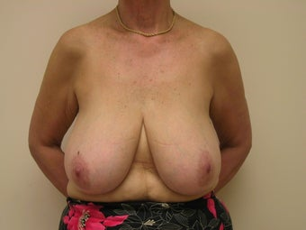 Breast Reduction before 1103803