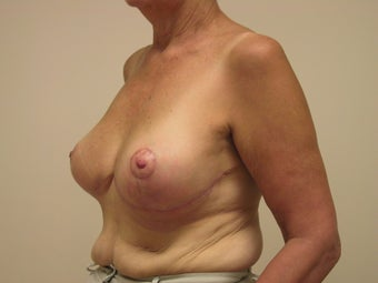 Breast Reduction 1103803