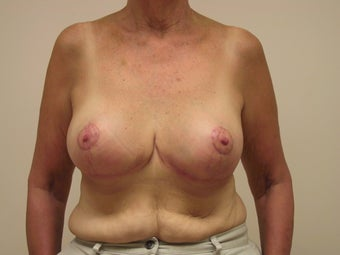 Breast Reduction after 1103803