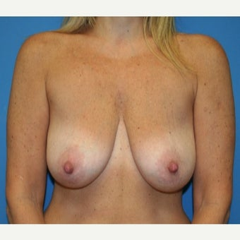 45-54 year old woman treated with Breast Lift with Implants before 1711064