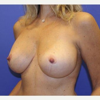 45-54 year old woman treated with Breast Lift with Implants 1711064