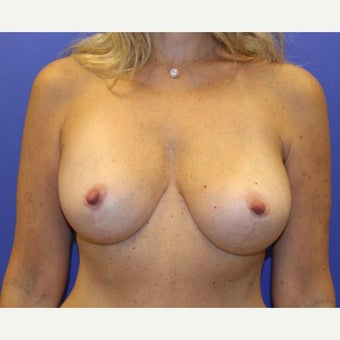 45-54 year old woman treated with Breast Lift with Implants after 1711064