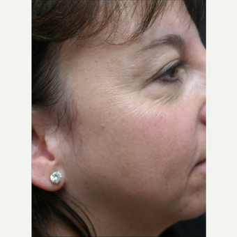 45-54 year old woman treated with Photofacial after 3252879